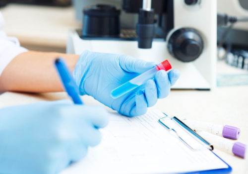 32617525 - closeup of a scientist working with samples in lab.